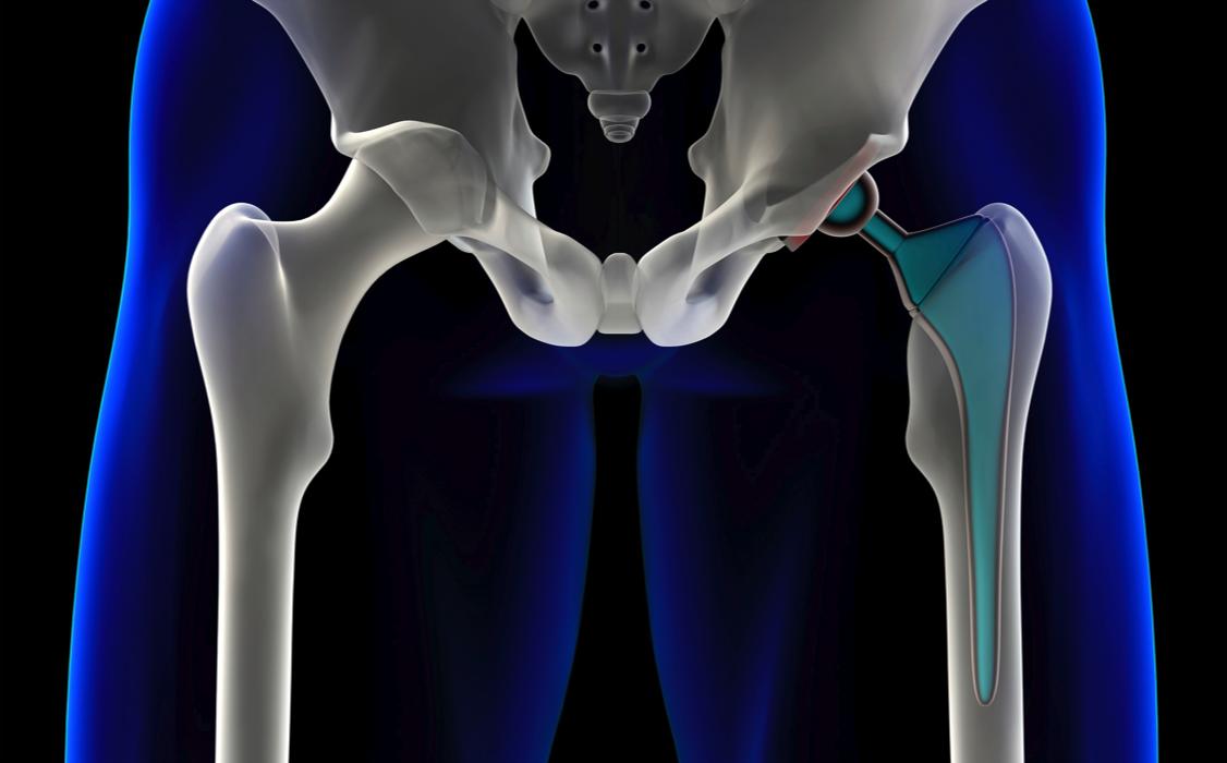 Hip Implant 2