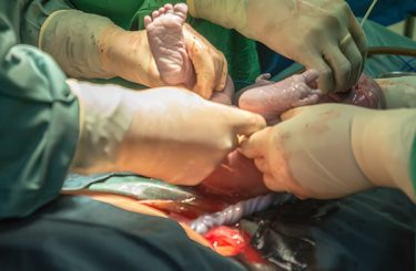 C-section