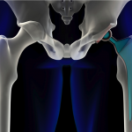 Wright Medical Hit with $4.5 Million Verdict over Defective Profemur Hip Implant
