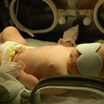 The Dangers of Undiagnosed or Untreated Infant Jaundice