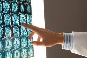 brain injury lawyer in michigan